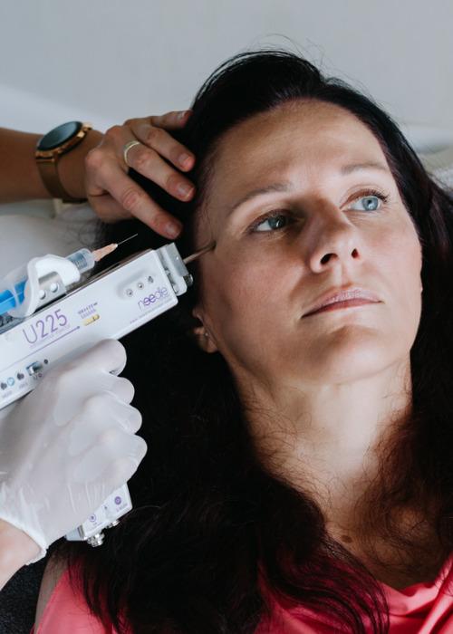 Tvárová mezoterapia